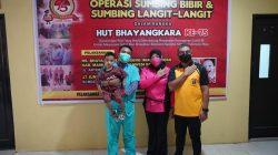 Sambut Hari Bhayangkara Ke-75, Polda Sulbar Gelar Operasi Bibir Sumbing